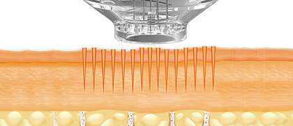 Effects of MTS: Boosting the collagen formation process