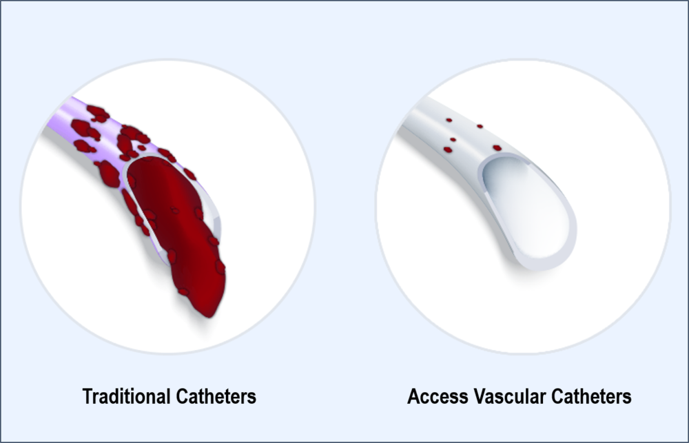 technology - Our hydrogel biomaterial is designed to reduce thrombosis, a leading cause of multiple complications for indwelling catheters.