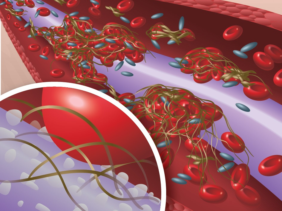 Thrombosis - Blood platelets react to the catheter material, forming blood clots that impede catheter flow and can lead to serious conditions like deep vein thrombosis and pulmonary embolism.
