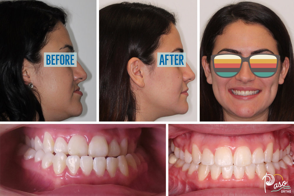 Adult Braces and Jaw Surgery