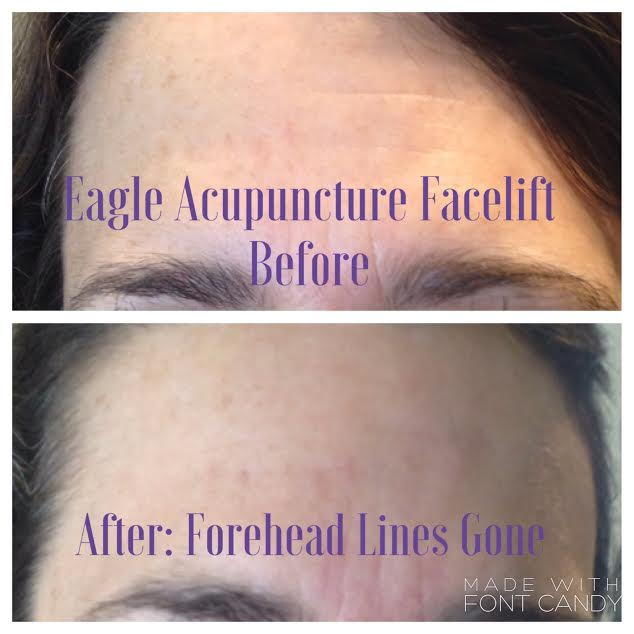 Forehead-lines-gone.jpg
