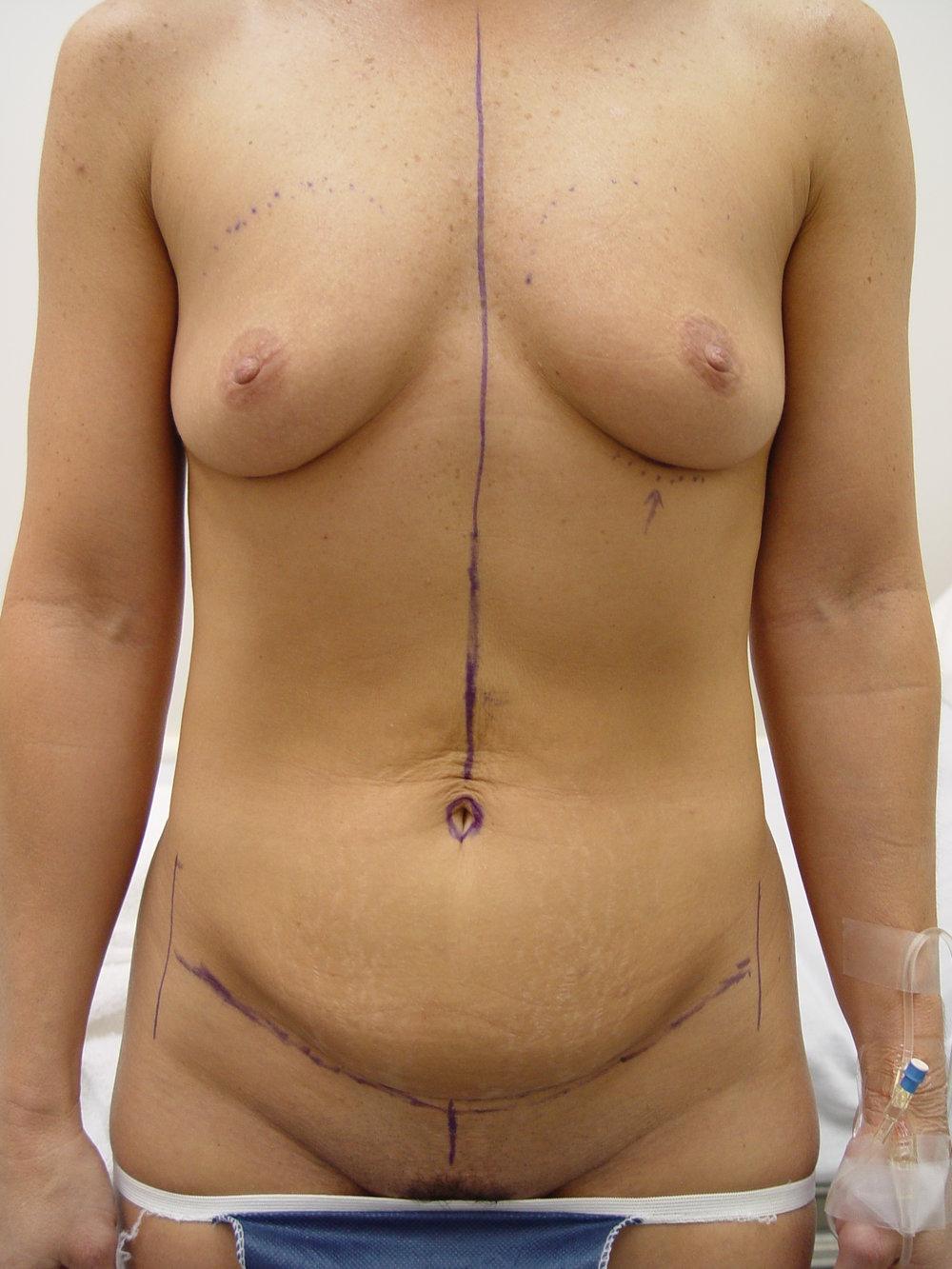 breastaug7.jpg