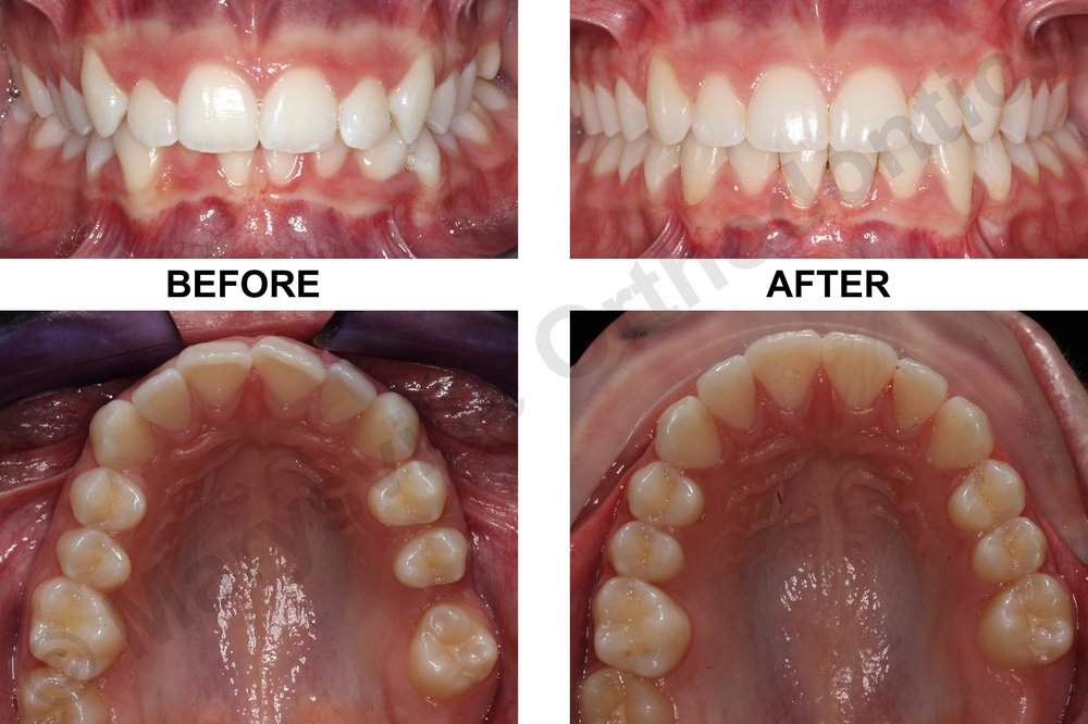 MISSING LEFT PERMANENT FIRST MOLAR