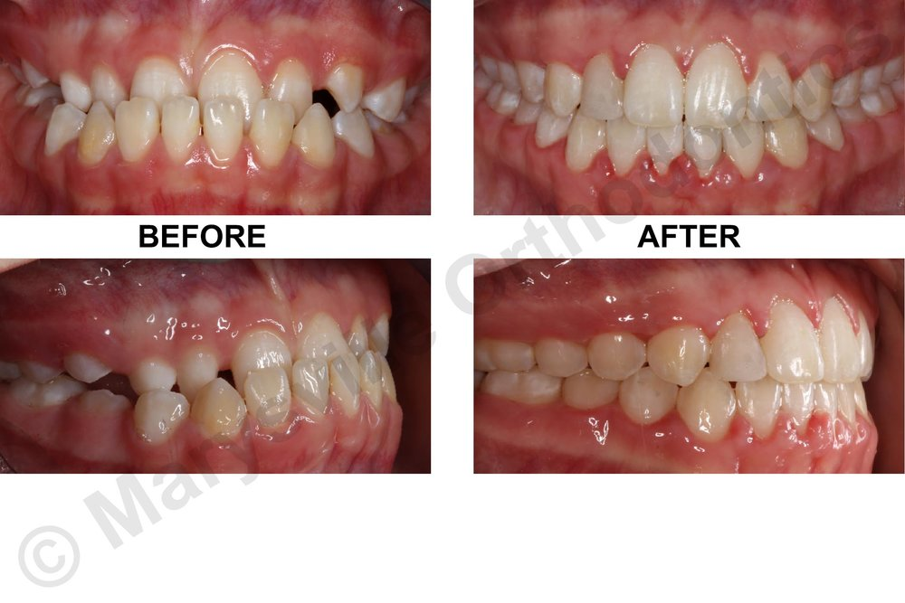 UNDERBITE, IMPACTED UPPER RIGHT CANINE AND UNDERSIZED UPPER RIGHT LATERAL INCISOR
