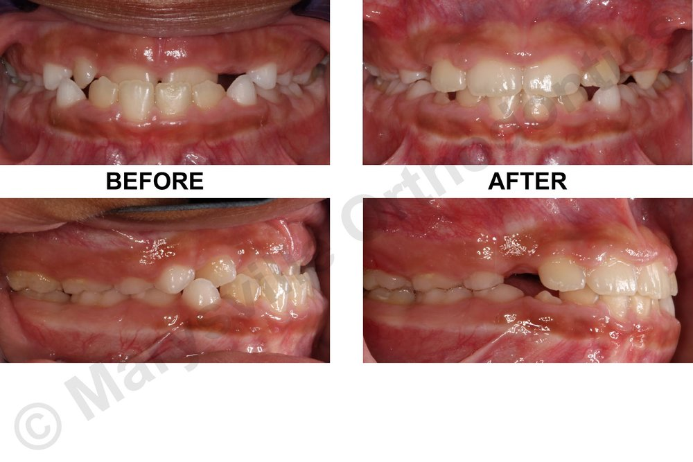 EARLY TREATMENT FOR UNDERBITE