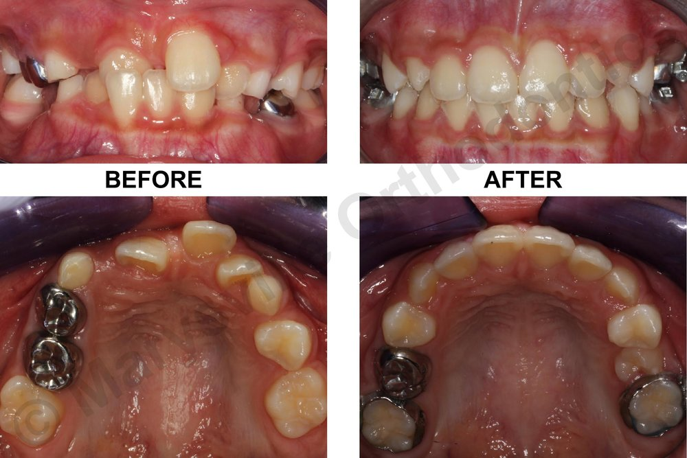 EARLY TREATMENT OF ANTERIOR CROSSBITE AND SPACE MANAGEMENT