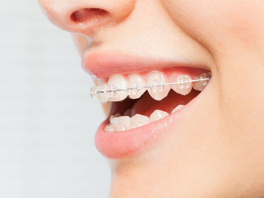 Clear Ceramic Braces with a Smile