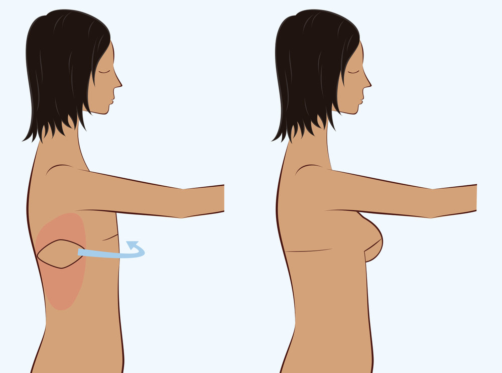 Illustration of autologous breast reconstruction surgery from the Latissimus Dorsi.