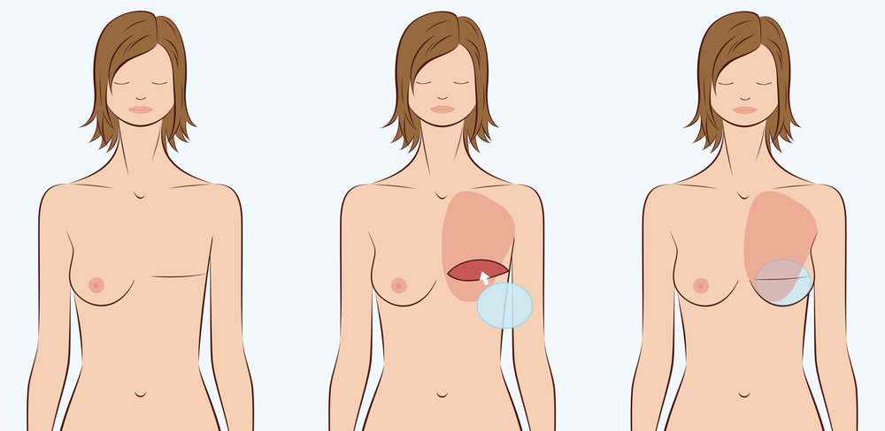 Illustration of implant based breast reconstruction.