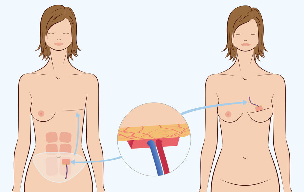 Illustration of autologous breast reconstruction surgery from the stomach.
