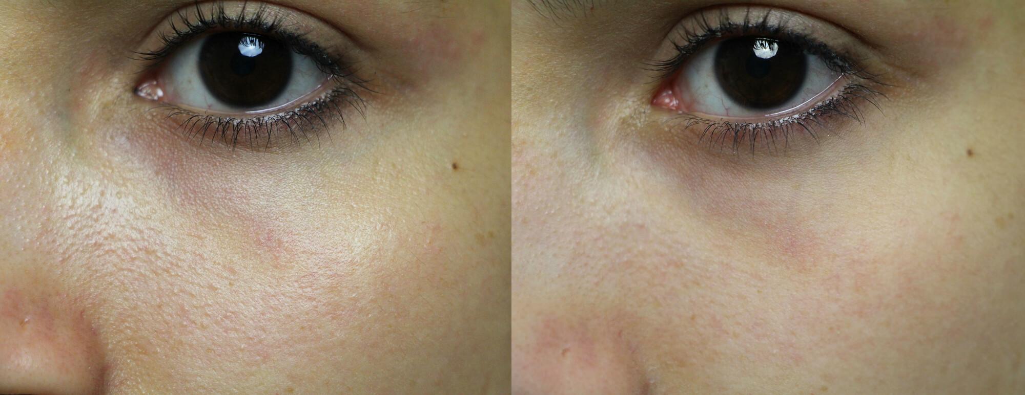 antes e depois 2 blur toque de natureza (1)