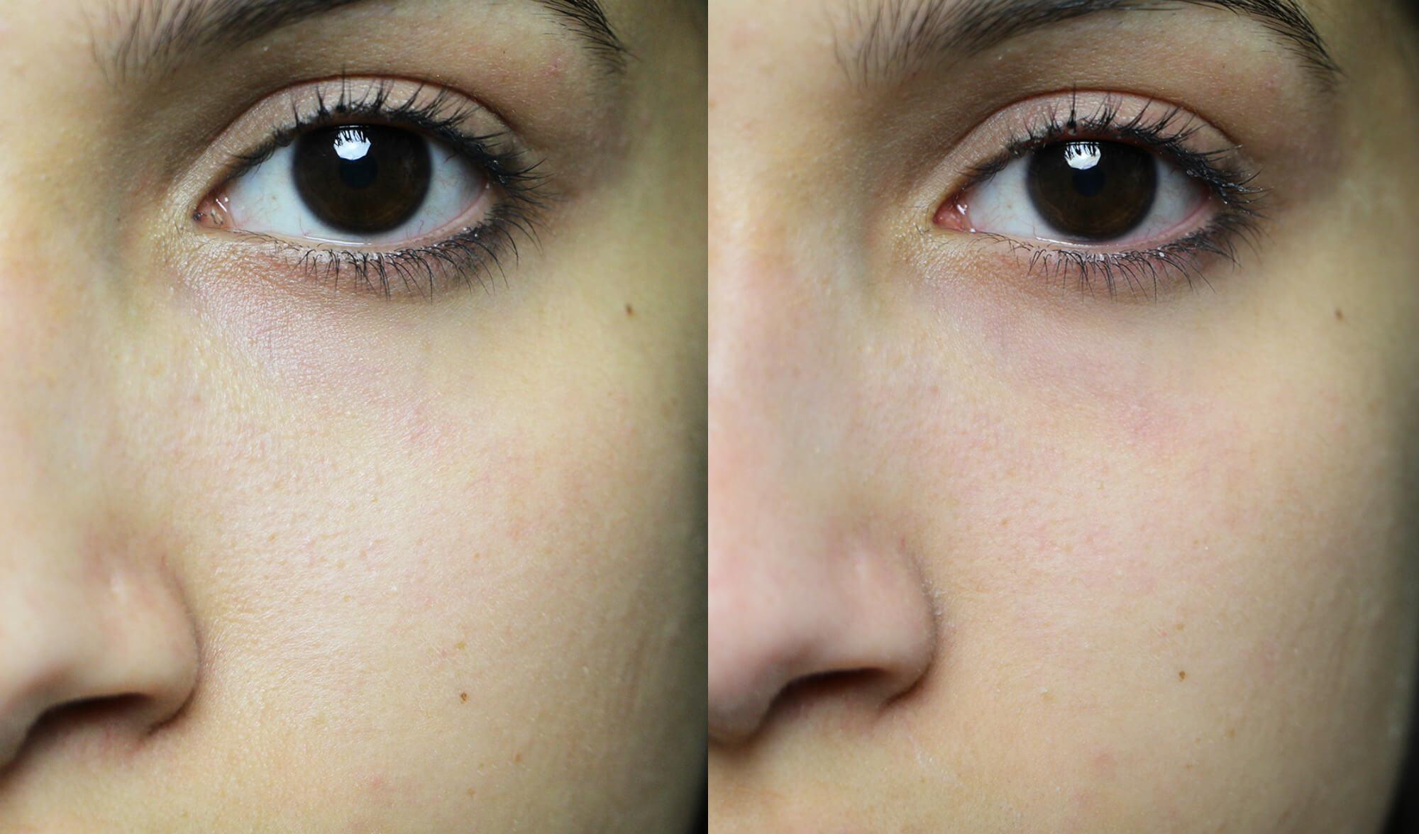 antes e depois blur toque de natureza (1)