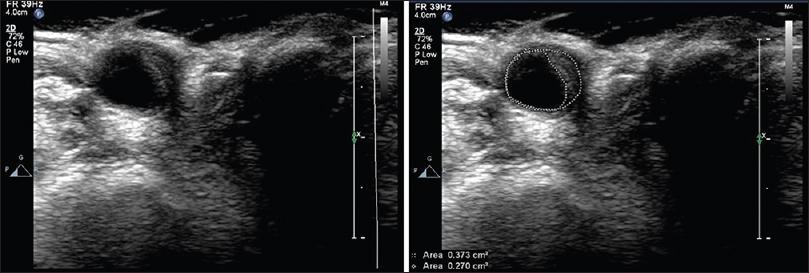JIndianAcadEchocardiogrCardiovascImaging_2017_1_1_39_204070_f4.jpg