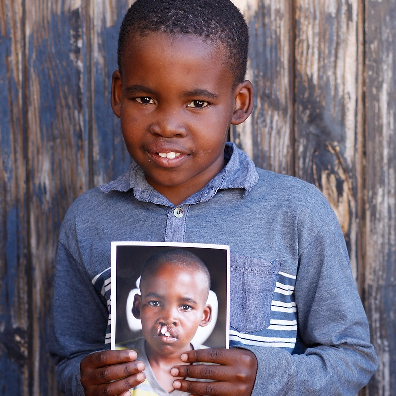 Operation Smile - Every person is worthy of love and everyone deserves to smile. Operation Smile provides free life-changing, life-saving surgeries to people living with cleft conditions around the world, so they can lead happier, healthier lives.