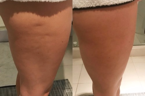 Cryoskin+Toning+Before+After+1.JPG