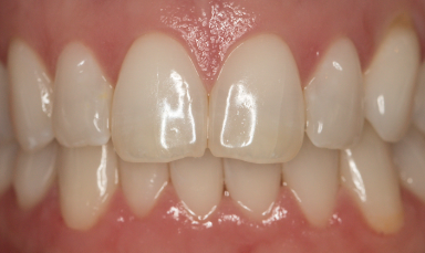 By coating your teeth to protect them -