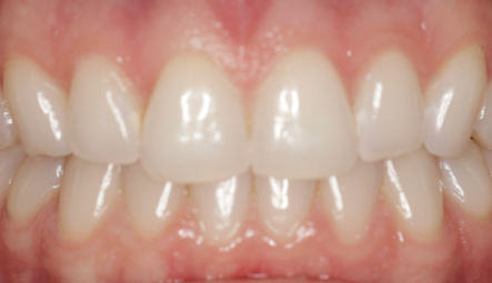By killing bacteria to brighten your smile -