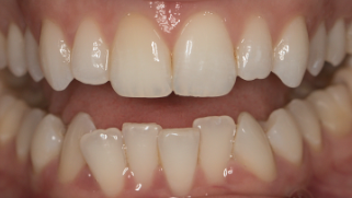 By putting your teeth in their natural position -