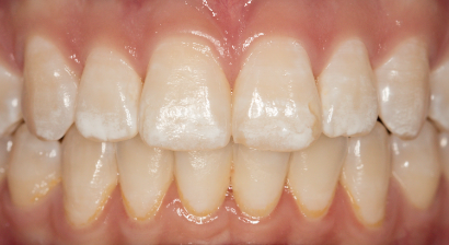 By reversing your cavities -