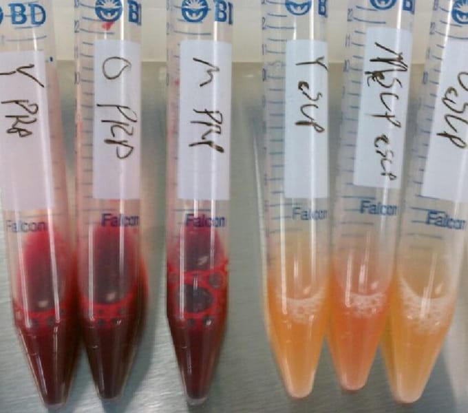 regenexx-experience-thrid-day-stem-cell-procedure.jpg