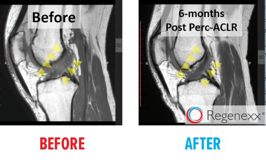 knee-mri-acl-tear-before-after5.png