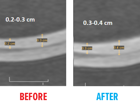 knee-msc-mri-before-after2.png