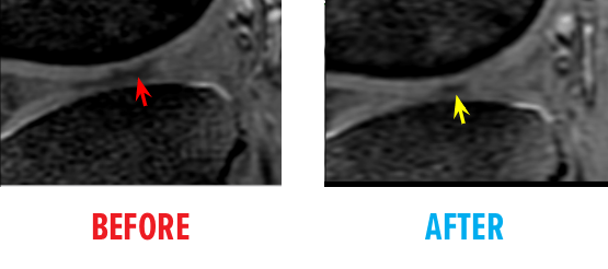 knee-osteochondral-defect-mri-before-after3.png