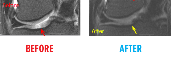 knee-osteochondral-defect-mri-before-after4.png