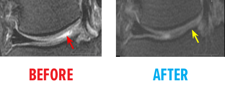 knee-osteochondral-defect-mri-before-after6.png