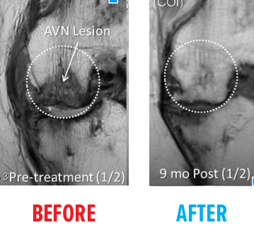 knee-avn-mri-before-after1.png