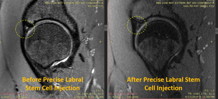 Hip Labrum Before and After Image.PNG