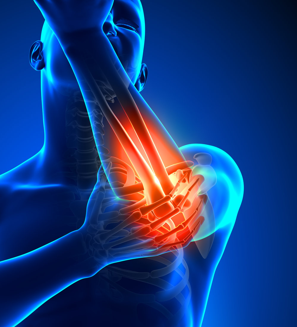 Elbow Patient Outcomes.
