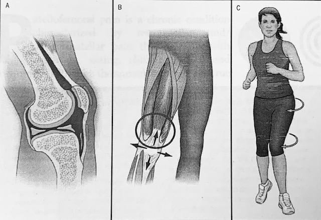 Stronger hip muscles can help your knee.