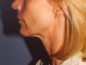 B-Face-Side-B-1.jpg