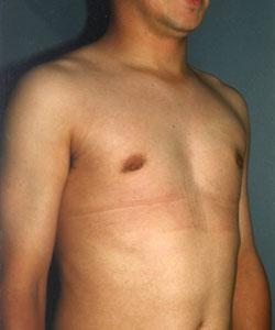 A-Gyneco-Side-A.jpg