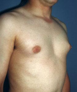 A-Gyneco-Side-B.jpg