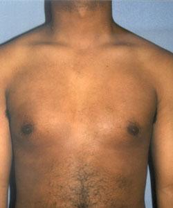 B-Gyneco-Front-A.jpg