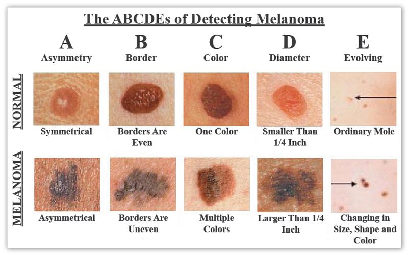 melanoma.png