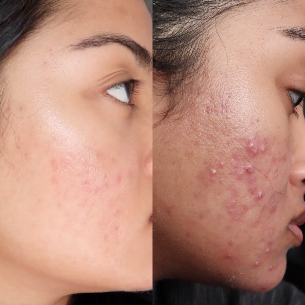 natrabella-skincare-acne-treatment-before-after.JPG