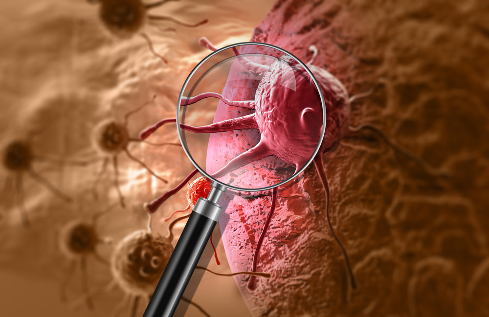 WHAT ARE DEADLY—or recalcitrant—CANCERS? -