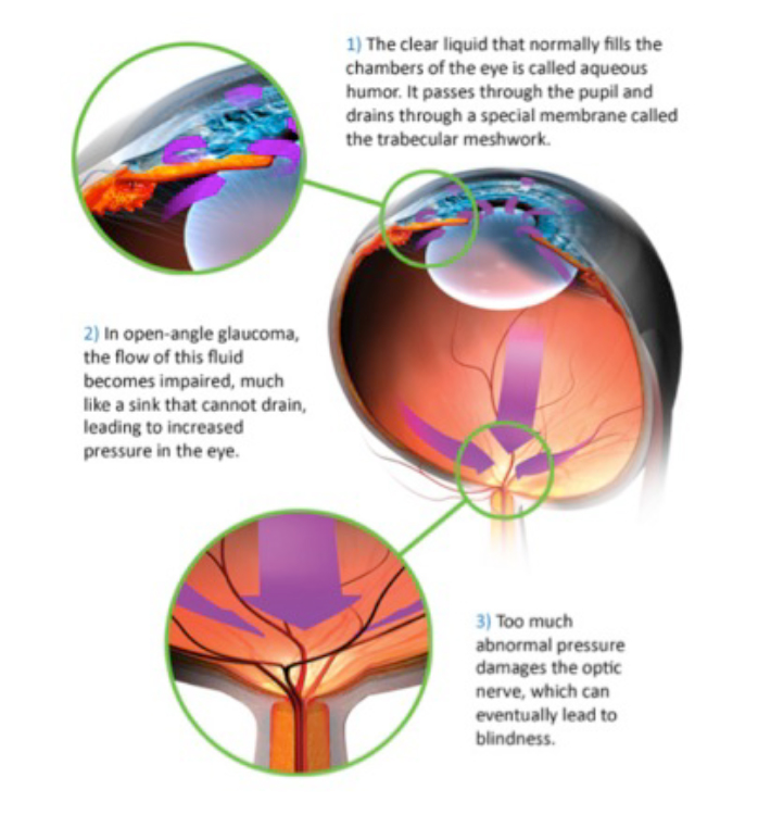 Illustration of Open Angle Glaucoma · Dr Brendan Cronin · Brisbane Ophthalmologist