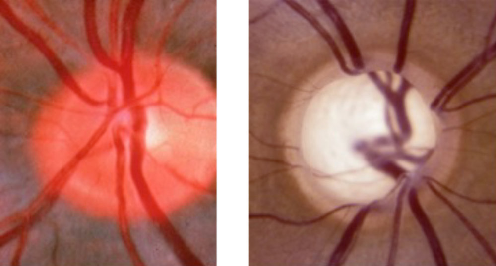 Illustration of a healthy optic nerve next to an optic nerve with Open Angle Glaucoma.