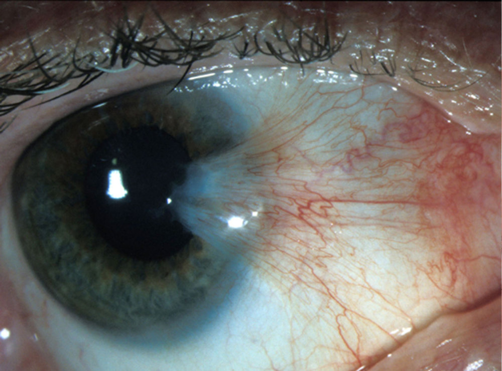 Pterygium on the surface of the eye.