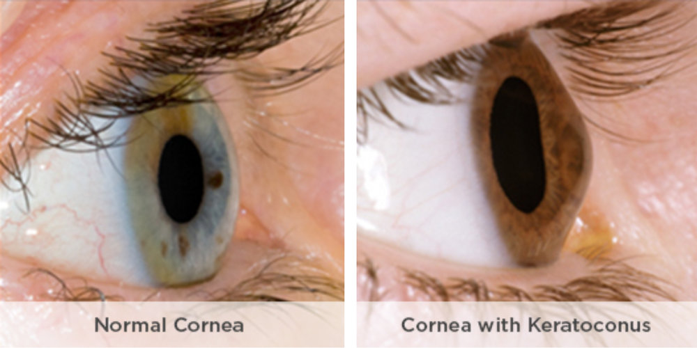 Photograph of Keratoconus.