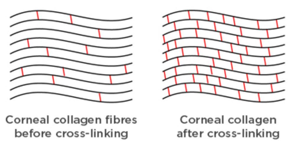 Cross Linking for Keratoconus Dr Brendan Cronin Brisbane.jpg