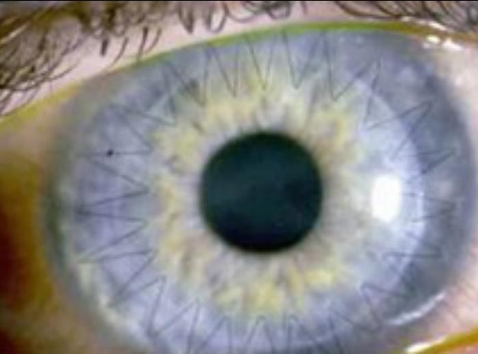 Corneal transplant in patient eye.