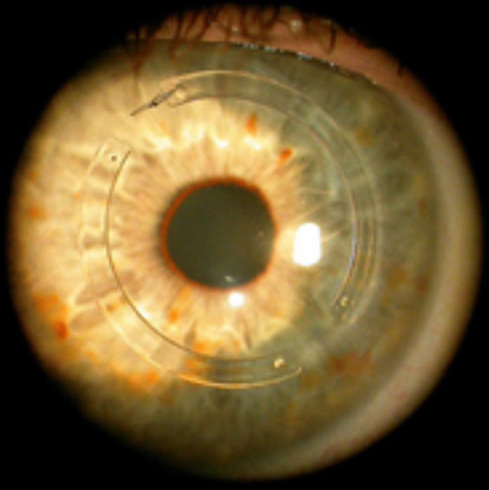 Corneal ring segments - Kerarings