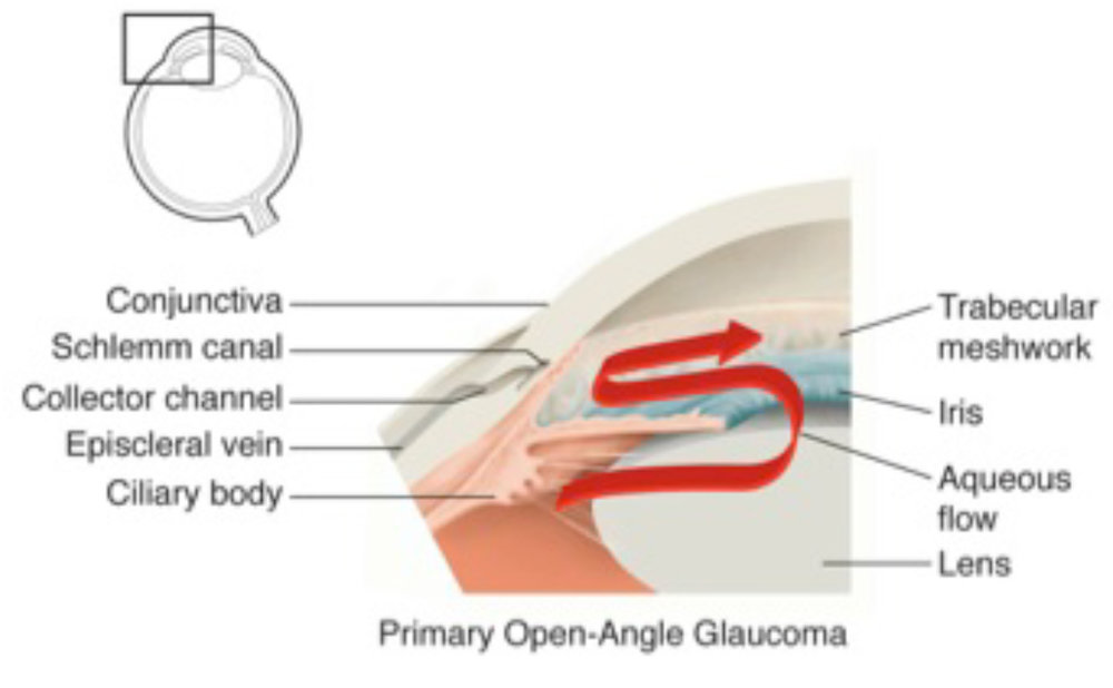 Diagram of Primary Open Angle Glaucoma.