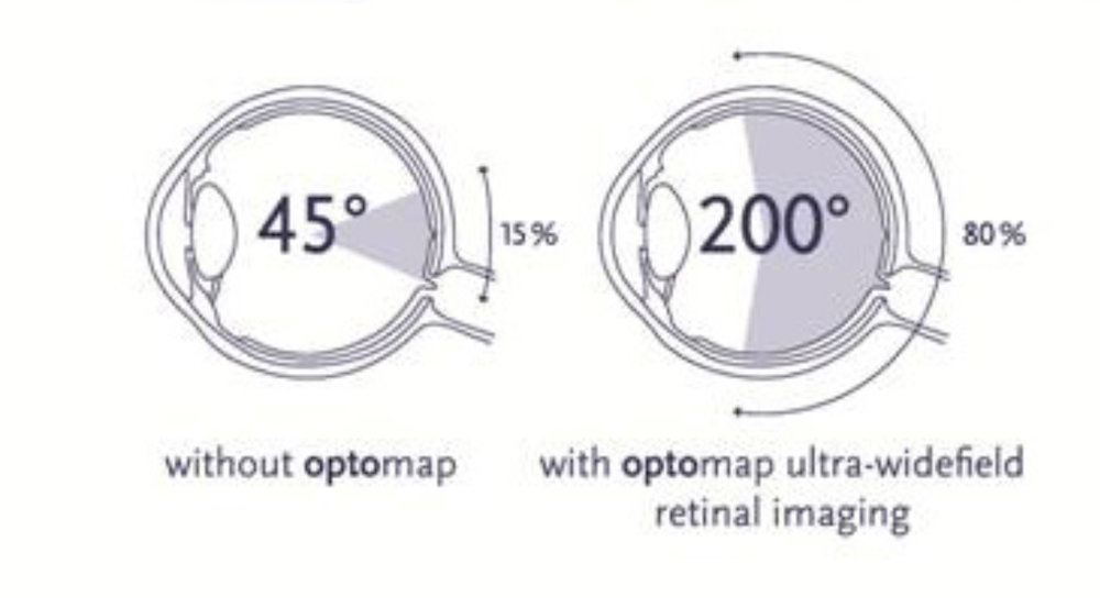 Optos Optomap retina imaging Dr Brendan Cronin, Brisbane.