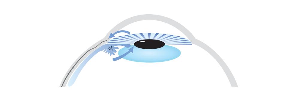 Angle Closure Glaucoma Brisbane Dr Brendan Cronin Icon.jpg